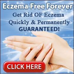 Eczema Free Forever