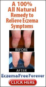Eczema Free You