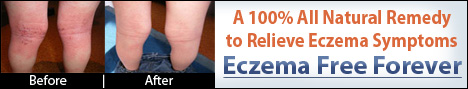 cure eczema naturally before - after