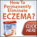 Eczema Homemade Eczema Cream - All Natural Lotion Safe for kids!