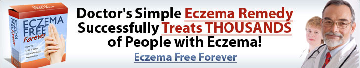 eczema causes and cures